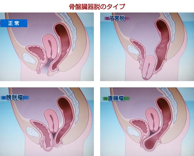 骨盤臓器脱の分類